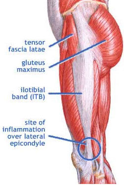 iliotibial band (it band) syndrome, Human Body