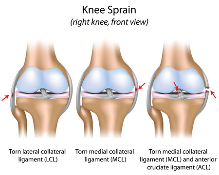 Ligament Injuries around Knee Joint